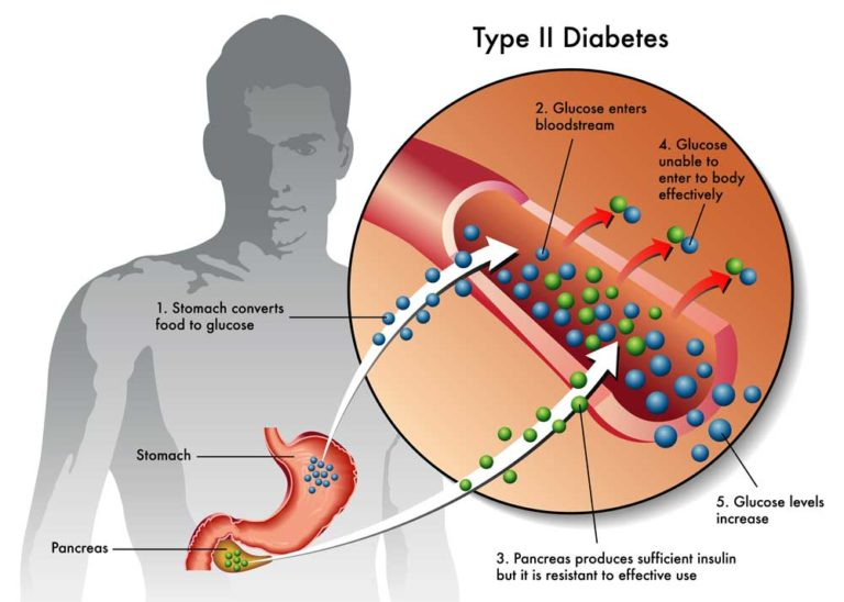 Σακχαρώδης Διαβήτης τύπου 2